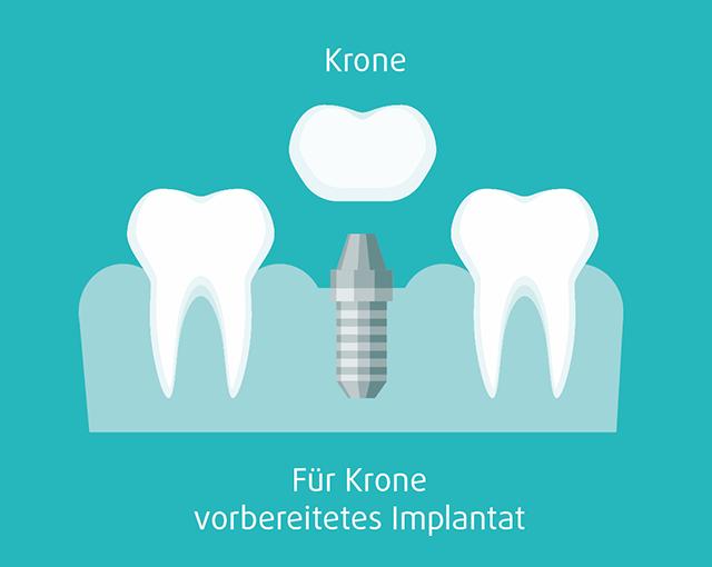 Für Krone vorbereitetes Implantat